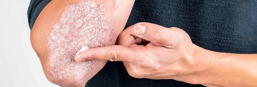 crème anti-psoriasis